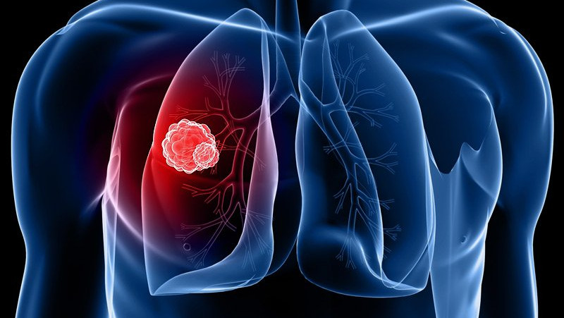 Lung-Cancer-3